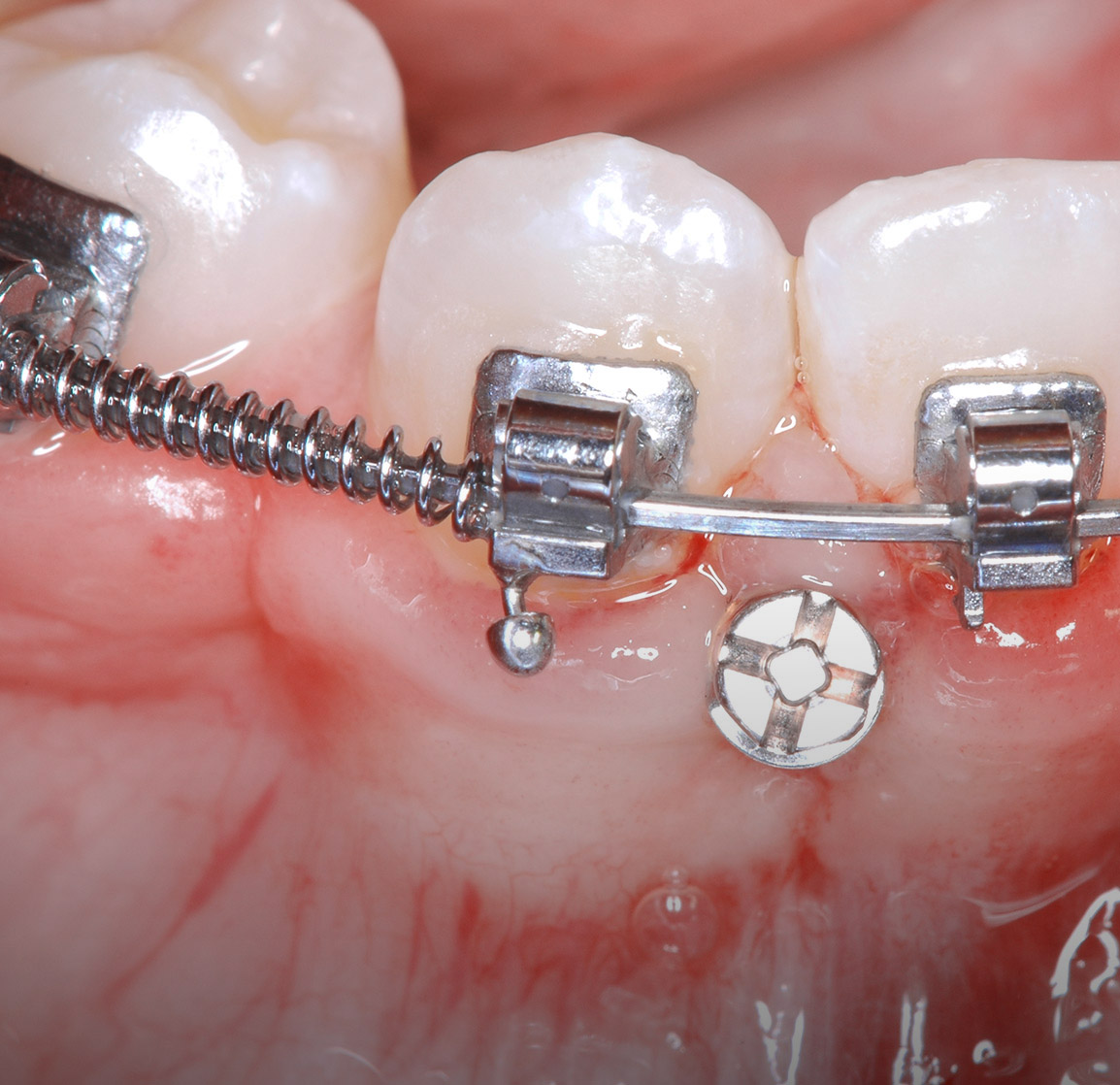 mini implants orthodontiques